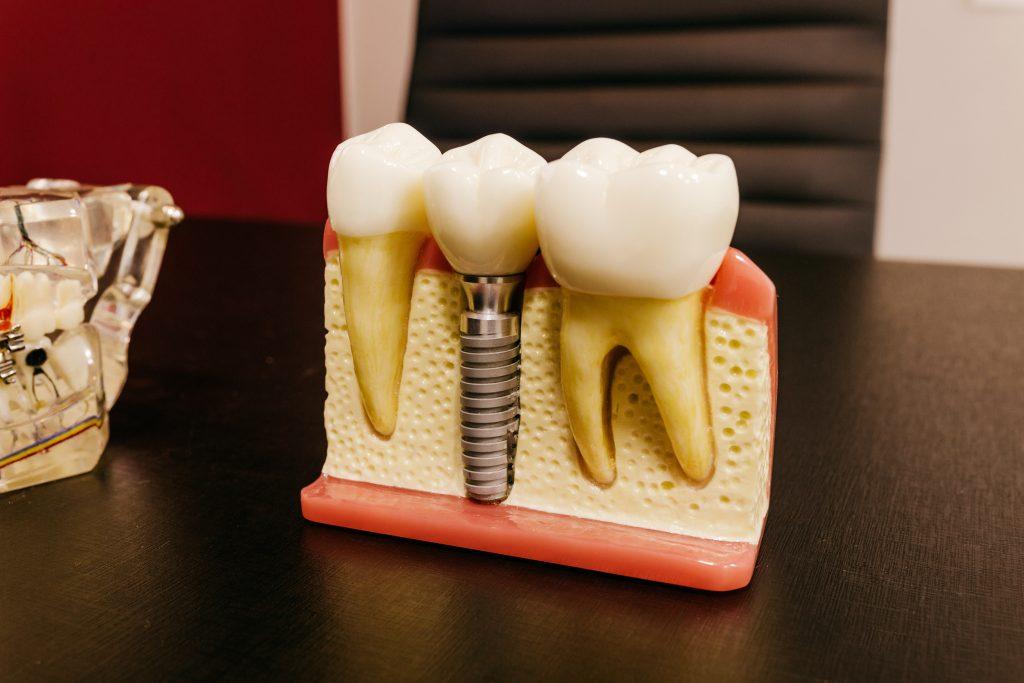 ¿Duran los implantes para siempre?